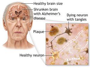 Kopi_juga_Dapat_Mencegah_Alzheimer_dan_Demensia_jualelektronik_blogger
